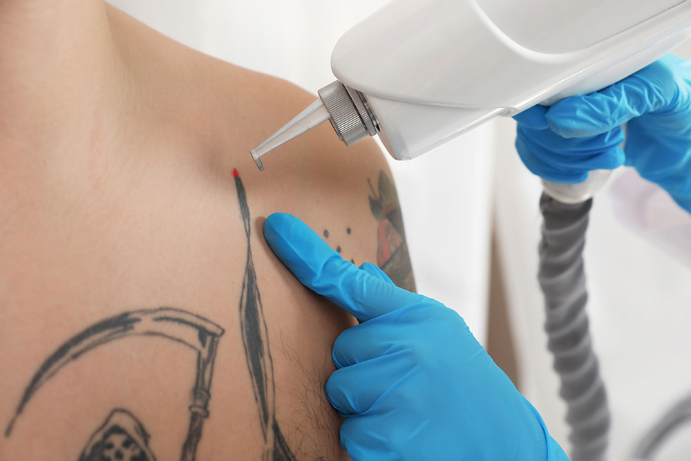 Have a Tattoo That Stinks? We'll Remove Your Ink!